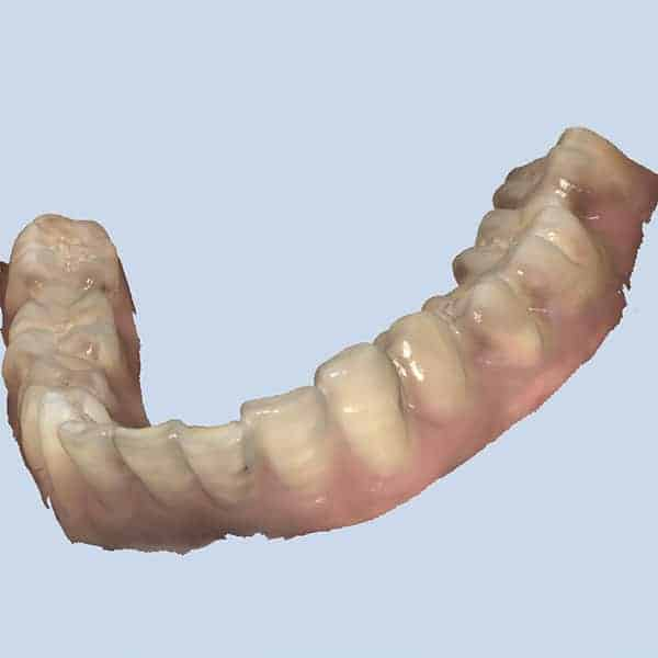 scanner_dentaire_intraoral_launca